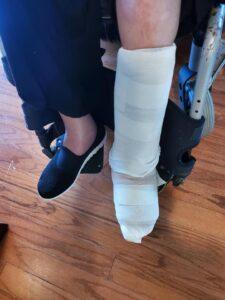 Sheri's left ankle bandaged up.